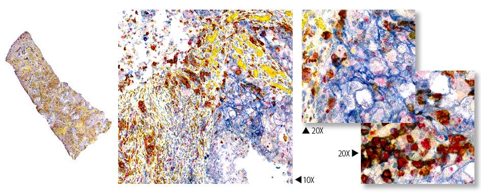 UltraPlex multiplex IHC staining of CD3/CD31/Ki-67.